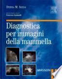 Diagnostica per immagini della mammella